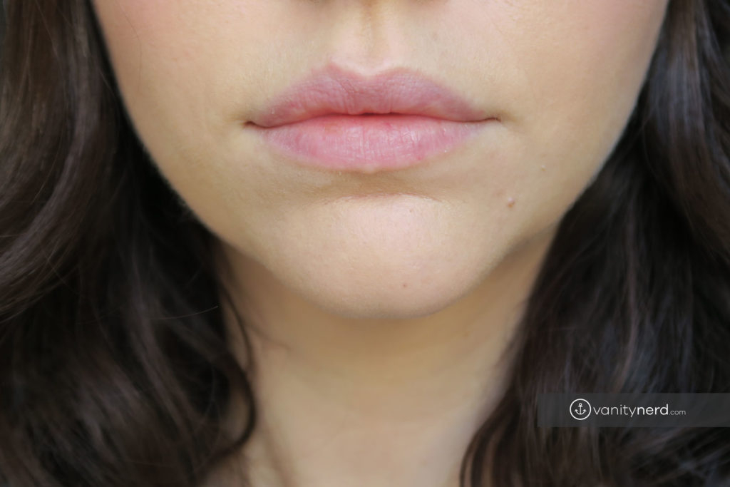 bare-lips